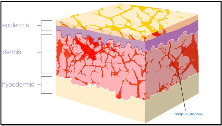 как выгдядят растяжки в структуре кожи