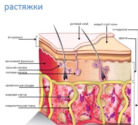 появление растяжек в структуре кожи